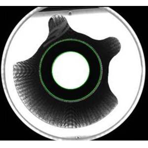 汽车零件视觉检测,汽车零件缺陷解决方案-机器视觉_视觉检测设备_3D视觉_缺陷检测